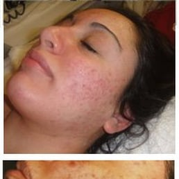 Acne Treatment Testimonial image
